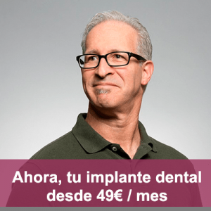 implantes dentales aljarafe