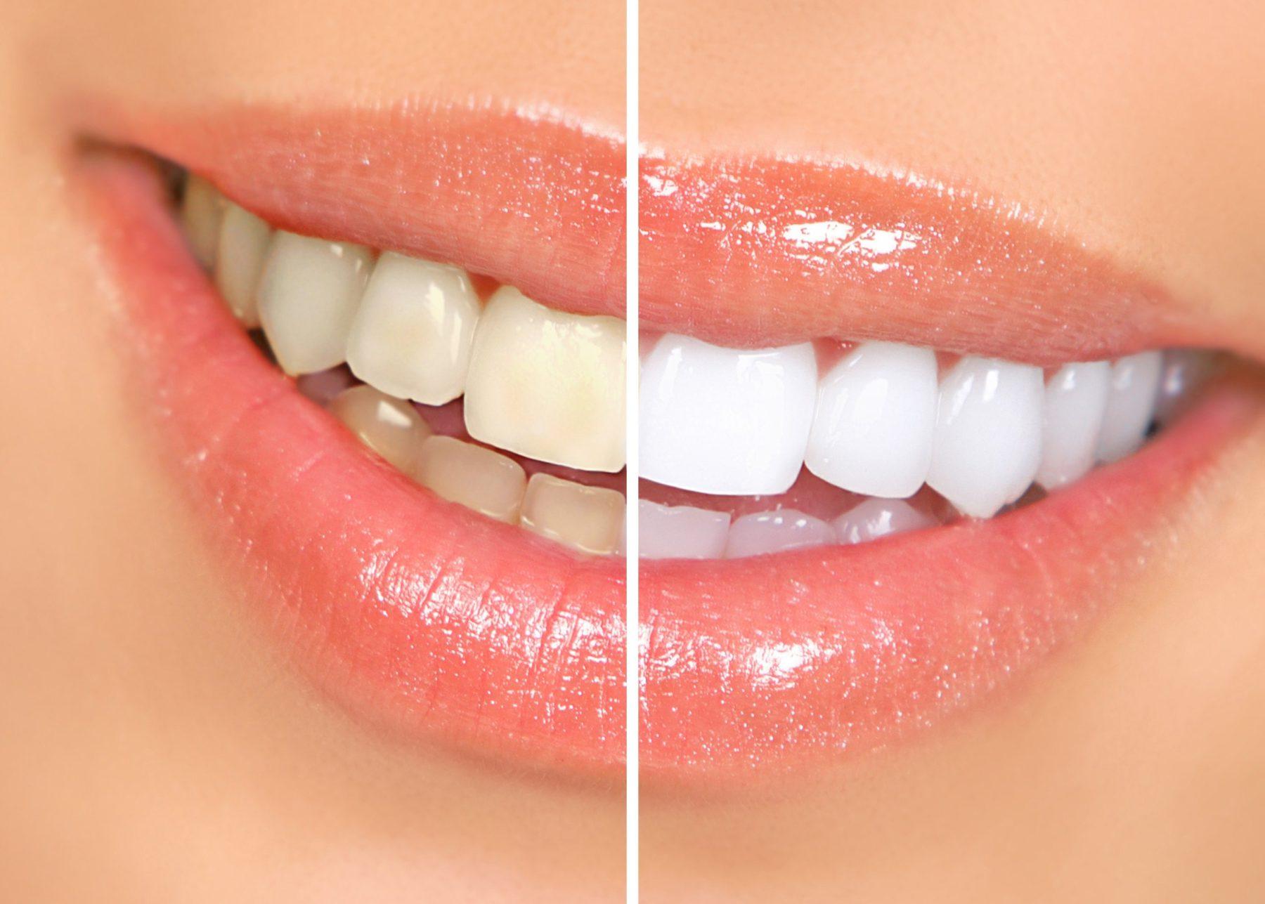 blanqueamientos dentales dentista Aljarafe-min